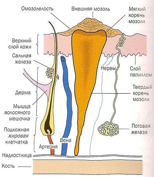 клумбы петунии сухая мозоль с корнем лечение детский