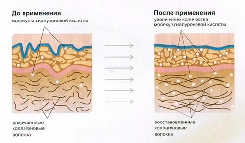 Схематическое изображения механизма действия гиалуроновой кислоты