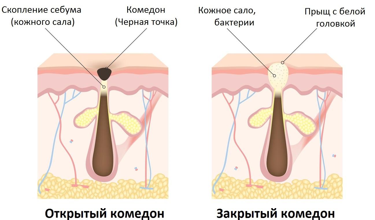На члене сальные железы как лечить 37