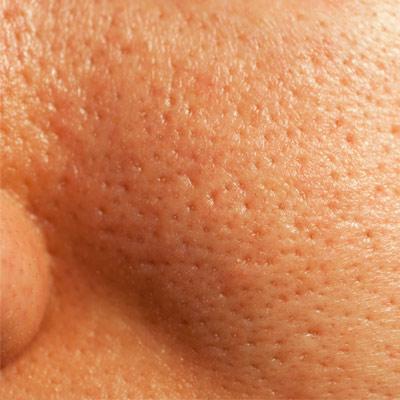 Жирная кожа лица что делать в домашних условиях