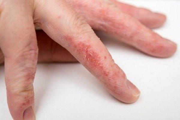 Дисгидротическая экзема кистей рук и стоп в одинаковых пропорциях встречается у женщин, мужчин и детей