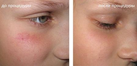 Лечение купероза на лице в домашних условиях: фото, отзывы ...