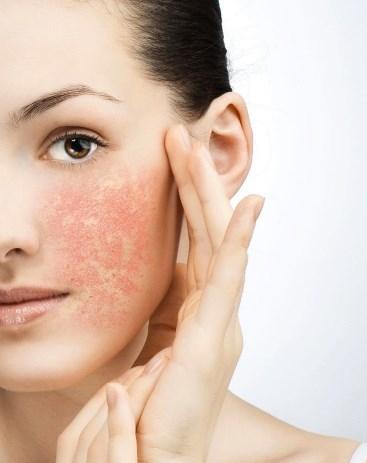 Чувствительная кожа лица – признаки и правила ухода