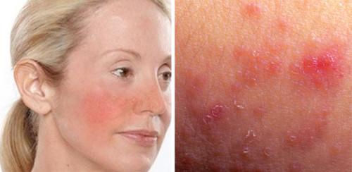 Признаки чувствительной кожи лица