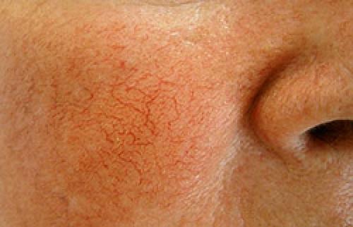 одним из проявлений чувствительной кожи будет также купероз